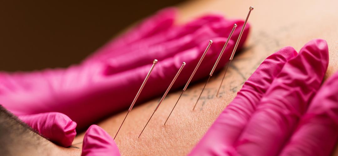 Terapia narzędziowa – Suche igłowanie